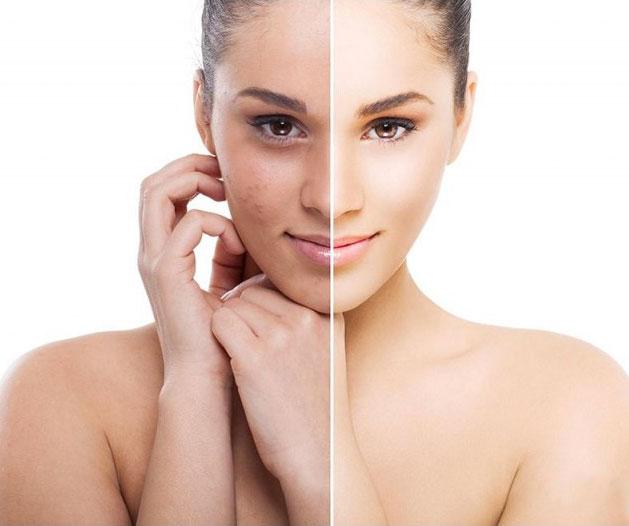 Cómo eliminar las manchas de la cara